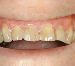 Heavily filled and stained front teeth